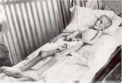 Lizzie van Zyl, visited by Emily Hobhouse in the Bloemfontein concentration camp