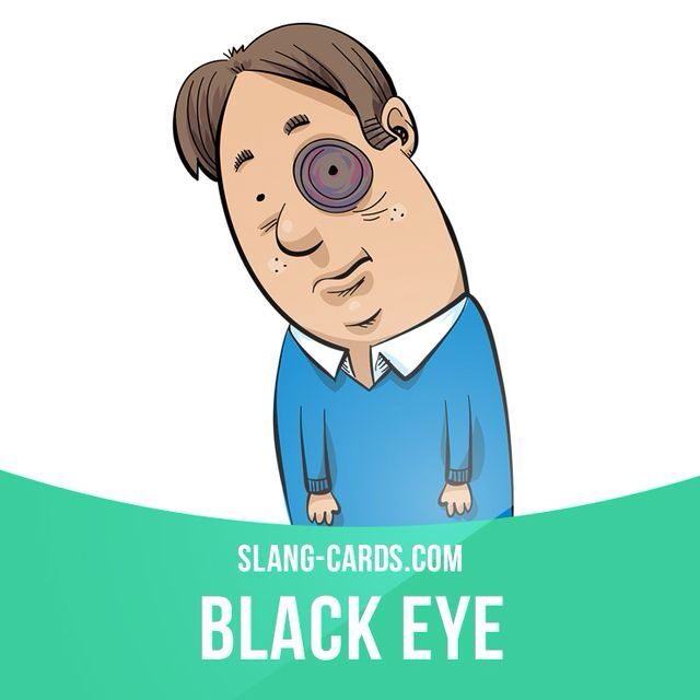 """Black eye"" means a bruise around the eye. Example: Pat got mad and punched Eric in the face. You should see the black eye Pat gave him!"