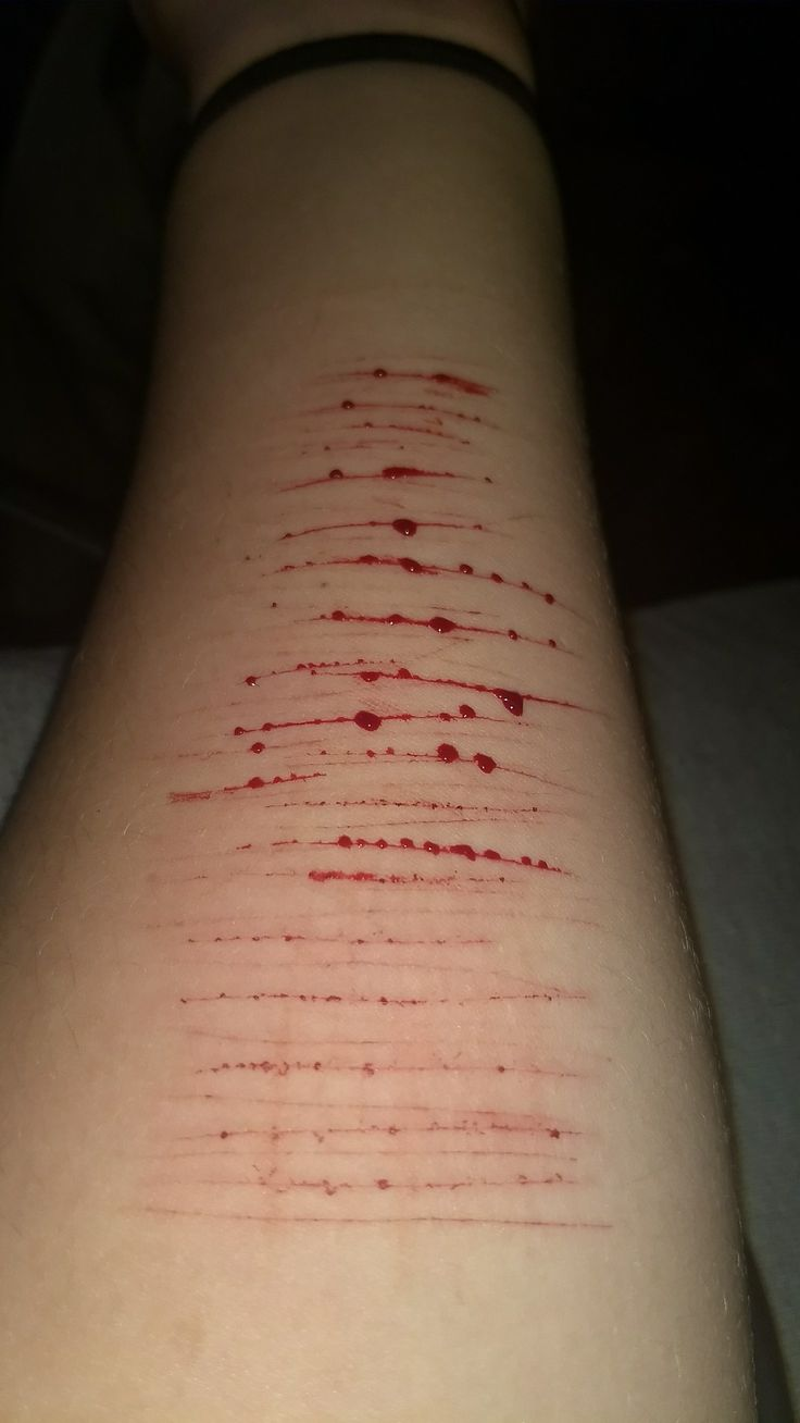 Do I Look Okay To You Cutting Self Harm Suicide