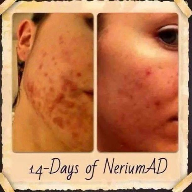Having trouble with #acne? #Nerium does it all! #Amazing results with an amazing product.  여드름 에 문제가 있습니까? Nerium 서양 은 다 한다! 놀라운 제품 으로 놀라운 결과 .  dowens12.nerium.com Facebook.com/danaowens.nerium  #confidenceboost #neriumlife #neriumad #EHT #neriumfirm #realpeople #realresults #beacnefree #clearskin #korea