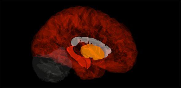 Gene signature in healthy brains pinpoints the origins of Alzheimer's disease | University of Cambridge #dementia #neurodegeneration #gene #chemistry