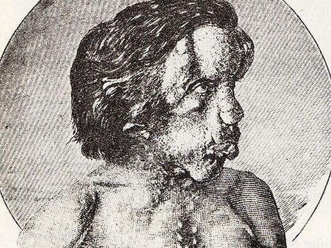 Proteus syndrome: The Elephant Man and beyond - Photo 1 - Pictures - CBS News