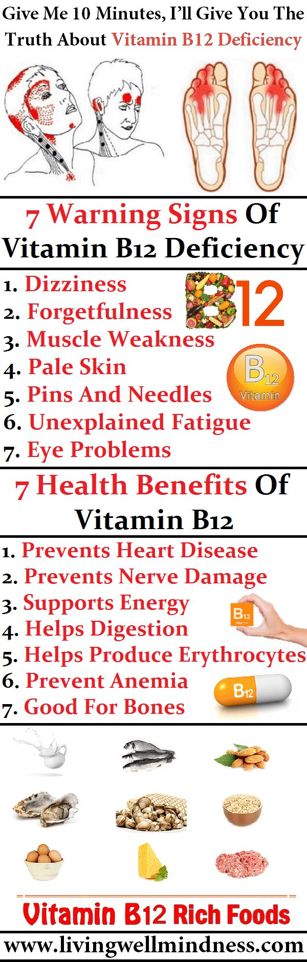 Best 25+ Vitamin b12 ideas on Pinterest | B12 deficiency, B 12 and ...
