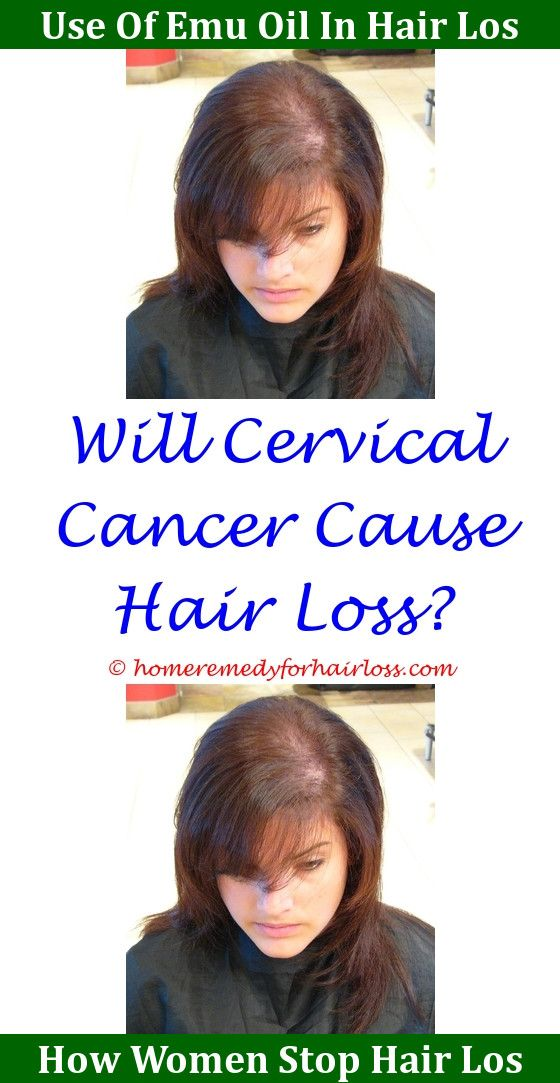 What Causes Loss Of Hair On Head Hair Loss Cat Hair Loss And Leg Hair