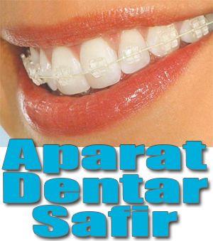 Cabinet Stomatologic DentoPlusConstanta  Este un cabinet de medicina dentara ce asigura pacientiilor toata gama de servicii stomatologice: stomatologie generala. chirurgie dentara si ortodontie. Ortodontia este o ramura a stomatologiei care se ocupa deaspectul estetic si functional al dintiilor prin alinierea lor cu ajutorul unui aparat dentar. Aparatele dentare sunt de doua categorii: aparate dentare mobile si aparate dentare fixe. La randul lor aparatele dentare atat mobile cat si fixe…