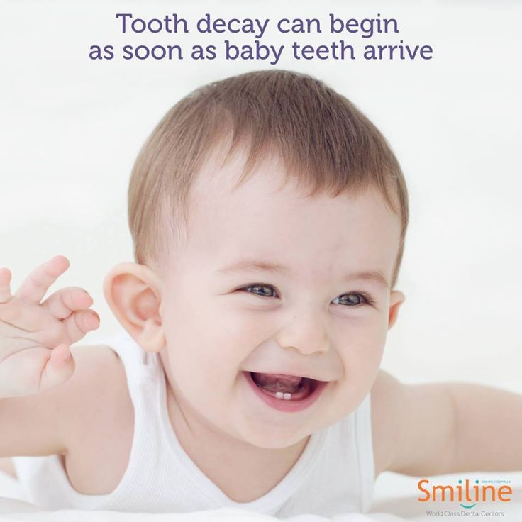 Prevent tooth decay by taking your child to a paediatric dentist when their first tooth appears, no later than their first birthday.  #Decay #Tooth #Child #Dentist #Dental #Smiline