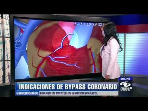 ¿En qué consiste la cirugía de bypass coronario? - 27 de enero de 2013