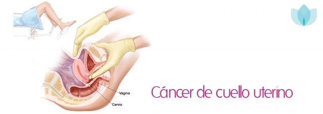 cancer-cuello-uterino Esta madre de 28 años de edad murió a causa de cáncer de cuello uterino.- Estos son los síntomas que ella ignoro.