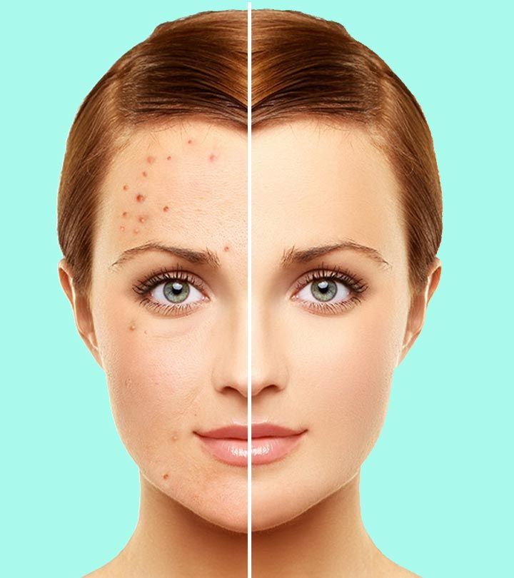 10 Natural Remedies To Manage Rosacea Types Symptoms And