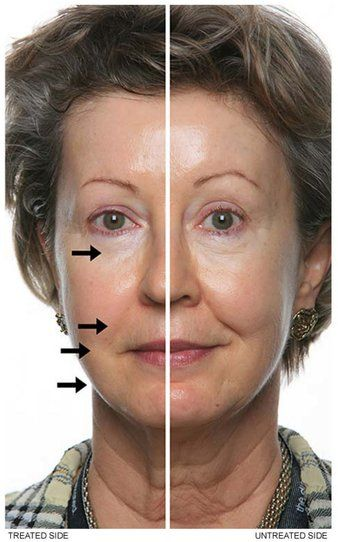 Deta Cosmo Bioresonance device improves skin elasticity. See the difference after 20 minutes of use