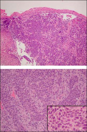 Squamous Carcinoma vs. Poorly Differentiated GI Adenocarcinoma vs. Small Cell Carcinoma  http://www.propath.com/companies/press-clippings/26-newsletters/306-squamous-carcinoma-vs-poorly-differentiated-gi-adenocarcinoma-vs-small-cell-carcinoma-october-2000