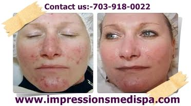 Impressionsmedispa US based in Vienna offers most innovative and demanded Fractional CO2 Laser Skin Treatments for relieving the patients suffering form collagen vascular disease and antiaging breakthrough of the decade and dramatically improve the appearance of wrinkles.