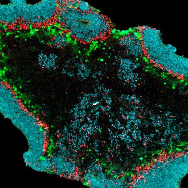 Microscope image: Retinal Organoid under the microscope ...