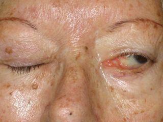 Parálisis facial   La parálisis facial disminuye o imposibilita la contracción de la musculatura de la cara.