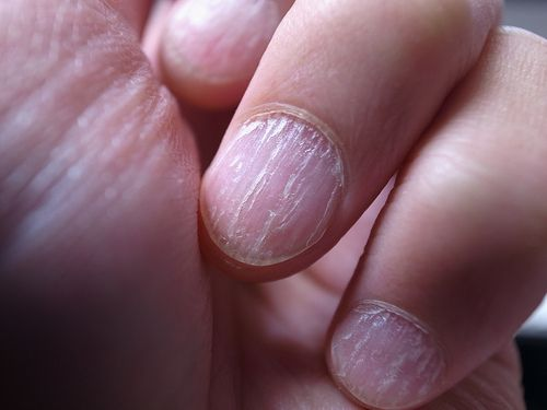 Remèdes maison contre les champignons des ongles - Améliore ta Santé