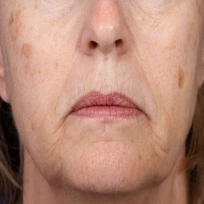 9 Home Remedies For Age Spots - Natural Treatments & Cure For Age Spots | Search Herbal & Home Remedy