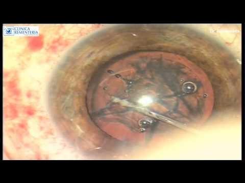 Paso a Paso de una cirugía cataratas Láser Femtosegundos | Dr. Rementeria http://www.cirugiaocular.com