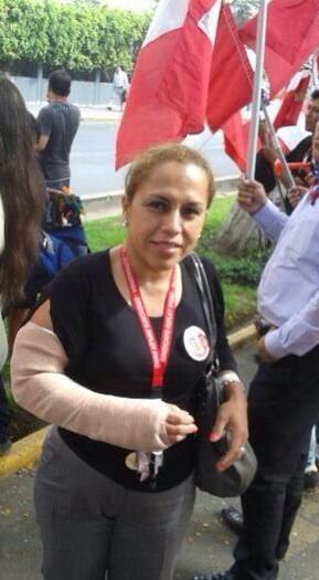 Ana Loyola, del sindicato de Ripley-Lima, golpeada por su jefe inmediato muestra el brazo enyesado.