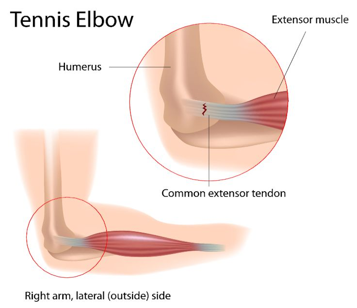 Acupuncture, among other methods, can be successfully used to treat tennis elbow.