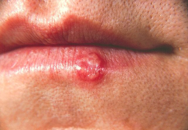 Cold sores, also known as fever blisters, are blister-like lesions or small sores that usually form inside the mouth or on the face. They cause a burning sensation, pain and itching before they burst. Most commonly, cold sores appear on the cheeks, chin,