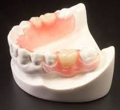 Can dentures or partial dentures look as good or better than your natural teeth? YES they can! Check this out! #dentures #dentist #dental www.advanced-smiles.com