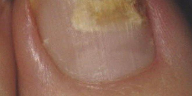 Pozagiełdowym Leczenia Grzyba Paznokci Wiele osób cierpi z powodu infekcji grzyba paznokci. Jest to w zasadzie, że zakażenie jest spowodowane paznokci przez grzyby. Grzyb rozwija się dobrze w śmietniku, wilgotne i ciemne miejsca i gwoździe przewidują tego środowiska. Paznokcie jednak rozwijać się zakażenia grzyb więcej niż paznokcie ze względu na fakt,