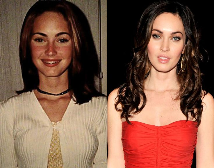"Like fine wine, Megan Fox only got better with age. Poking fun at her younger years, the former ""Transformers"" star and Hollywood sex symbol posted photographs to Facebook of herself from the mid '90s. ""Say hello to my 12 year old self,"" the actress wrote, sharing an image of herself wearing a white sweater with a painful-looking sunburn on her face and braces."