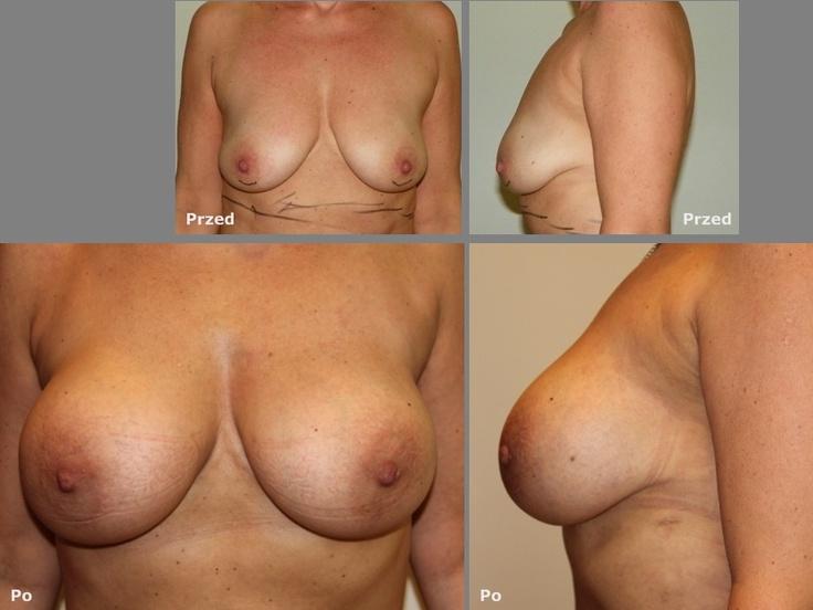 Powiększanie biustu