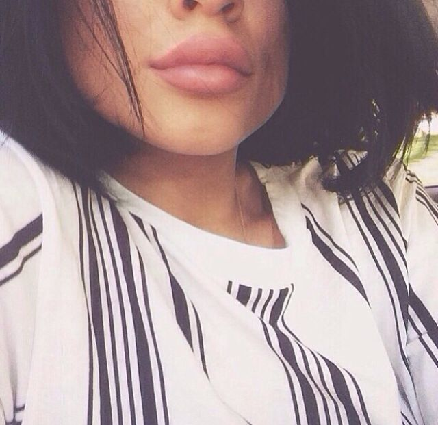 Kylie Jenners plastic surgery & lip fillers