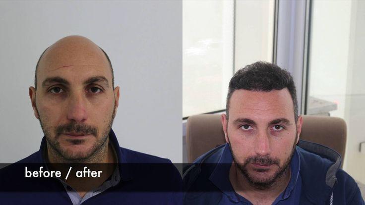 "Check out my @Behance project: ""Hair Transplant in Dubai"" https://www.behance.net/gallery/54990063/Hair-Transplant-in-Dubai"
