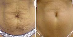 Υγεία - Το χαλαρό και κρεμασμένο δέρμα δεν φαίνεται καθόλου ωραίο. Αν θέλετε να βελτιώσετε την υγεία του δέρματός σας και να το σφίξετε για μια πιο νεανική εμφάνισ