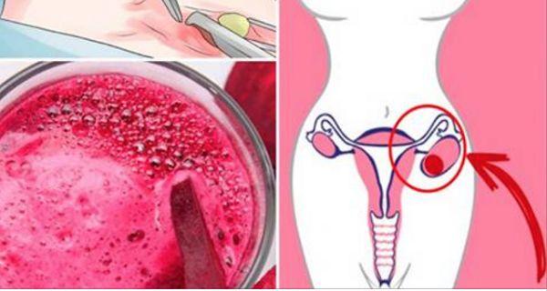 Lorsque le gynécologue détecte un fibrome ou un kyste, cette seule boisson suffit à faire disparaître les douleurs !...