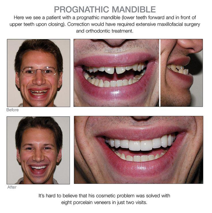 lower teeth veneers 97 best porcelain veneers before and after images on pinterest