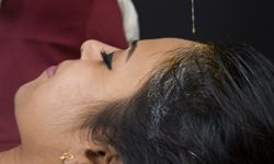Ayurvedic Hair loss and hair care treatment in Bangalore at Arth an ayurvedic center helps to restore imbalance without any side effects that helps in reduction of hair loss.