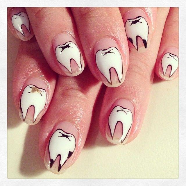 Tooth Nail Art