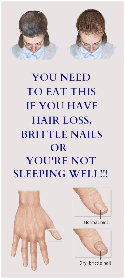 You Need To Eat This If You Have Hair Loss, Brittle Nails Or You're Not Sleeping Well -