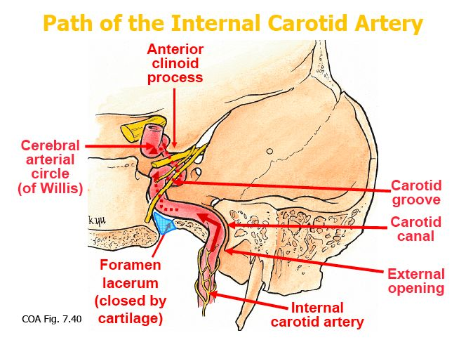 carotid canal and foramen lacerum - Google Search