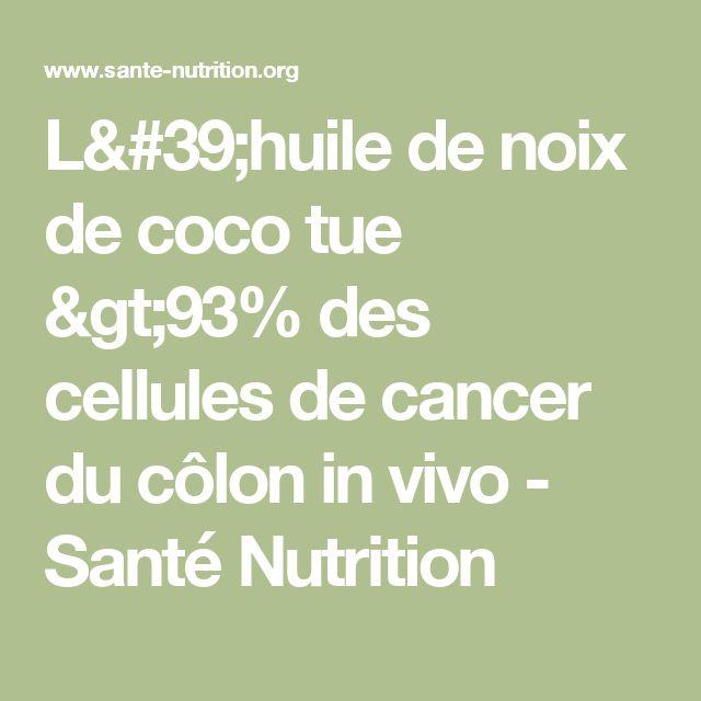 L'huile de noix de coco tue >93% des cellules de cancer du côlon in vivo - Santé Nutrition