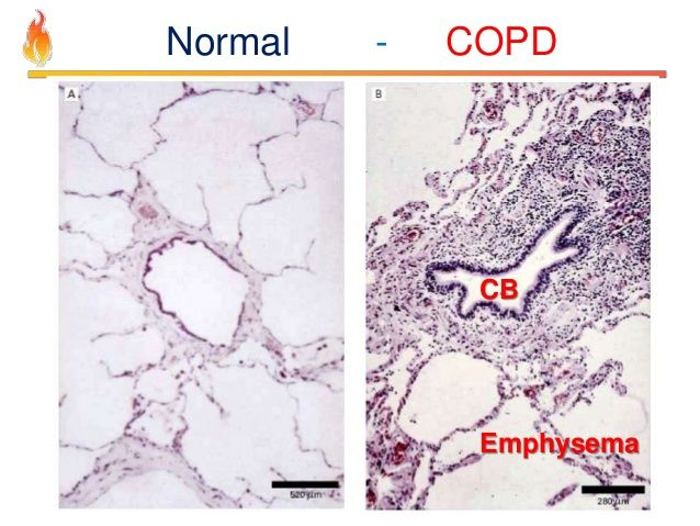 Emphysema histology vs normal