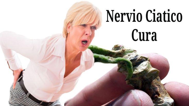 http://cure-ciatica-y-hernia-de-disco.good-info.co Nervio Ciatico Cura, Hernia De Disco Tratamiento, Dolor De Ciatica Sintomas, Dolores De Ciatica, ¿Qué es la ciática? http://como-curar-la-ciatica.blogspot.com/