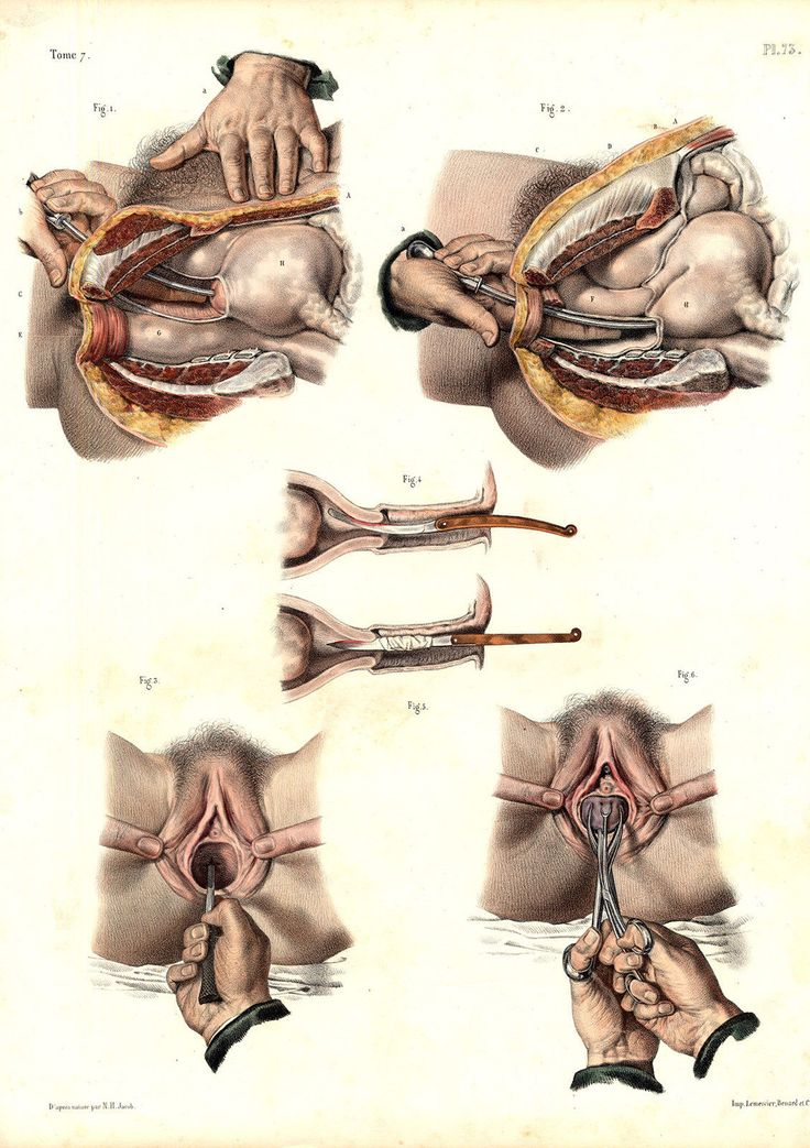 168 Best Medical History Images On Pinterest Medical History