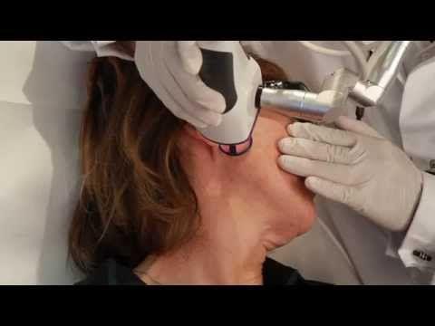 Epilation laser Genève - Détatouage Genève - Aesthetics