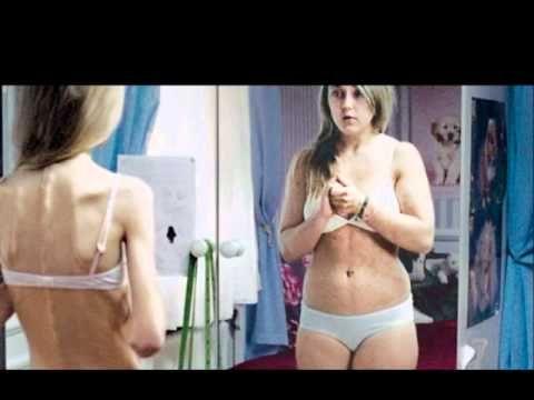 Asian women eating disorders thin