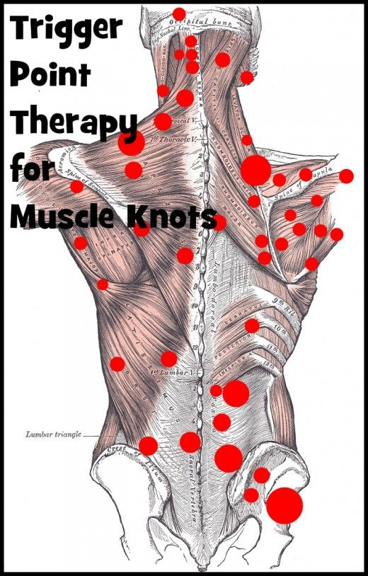 Effective Trigger Point Therapy For Muscle Knots Physical Therapy