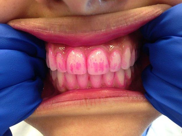 Plaque on your teeth is always lurking, just waiting to destroy your teeth.   8 Slightly Gross Facts That Will Make You Very Aware Of Your Mouth