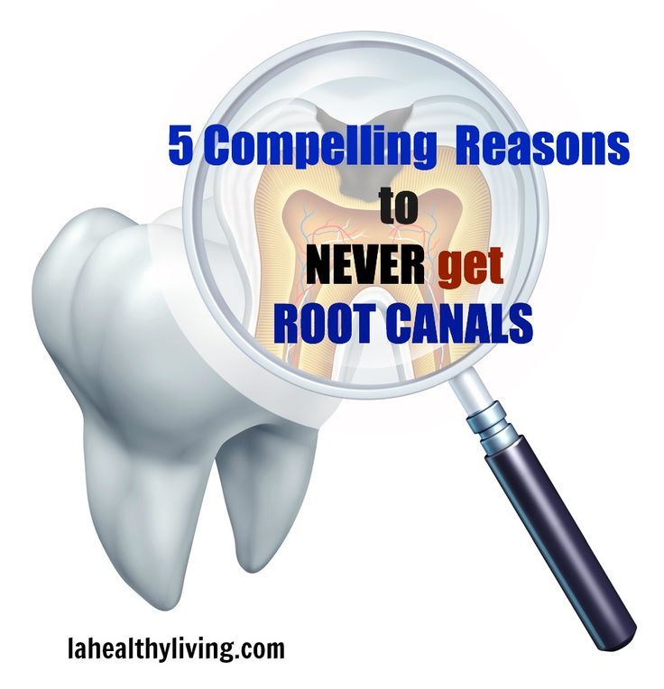 "5 Compelling Reasons To Never Get Root Canals.  It amazes me how common this procedure is and how most people have no idea what can stem from a ""simple"" root canal.  If even routine dental cleanings can release harmful bacteria from oral biofilms and into the rest of the body, imagine what a ROOT CANAL can do!"