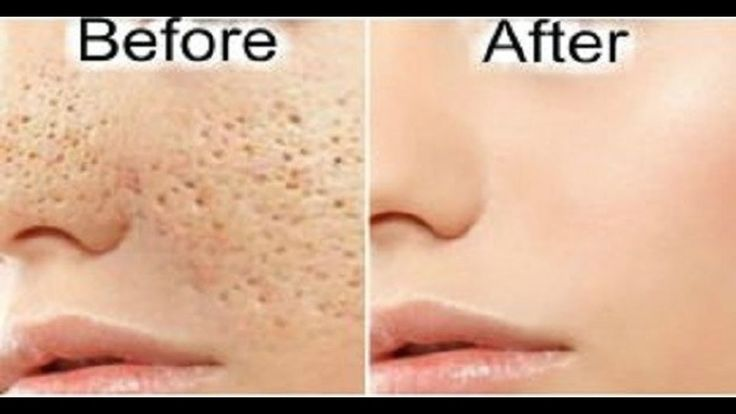 How to make pores disappear. 3 Days and all Open Pores will Disappear from your Skin Forever. Pores are small openings on the skin which allow it to breathe. They are almost impossible to be seen with the naked eye but may grow in size as we get older. Enlarged pores look really unpleasant and can ruin your appearance which is why everyone wants to resolve the problem as soon as they can. Instead of using commercial products and treatments try using these natural remedies against enlarged…