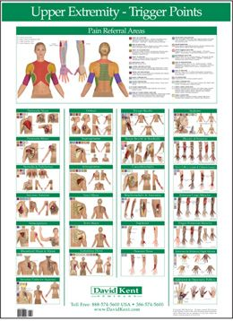 Free Printable Acupressure Points Chart | W41172UE: Trigger Point Chart Upper Extremity 1