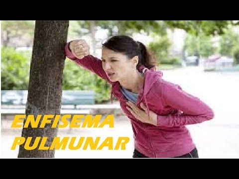 Enfisema Pulmonar - Fisioterapia pulmonar ajuda ex fumantes a recuperar ...