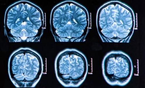 Estimular el hipotálamo revierte la pérdida de memoria tras lesión cerebral